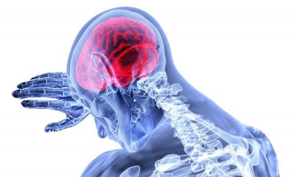 Baremo médico: Secuelas en el sistema nervioso